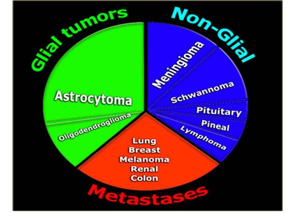 1)Nöroepitelyal kaynaklı tümörler •Gliomalar,glial hücrelerden orijin alır.