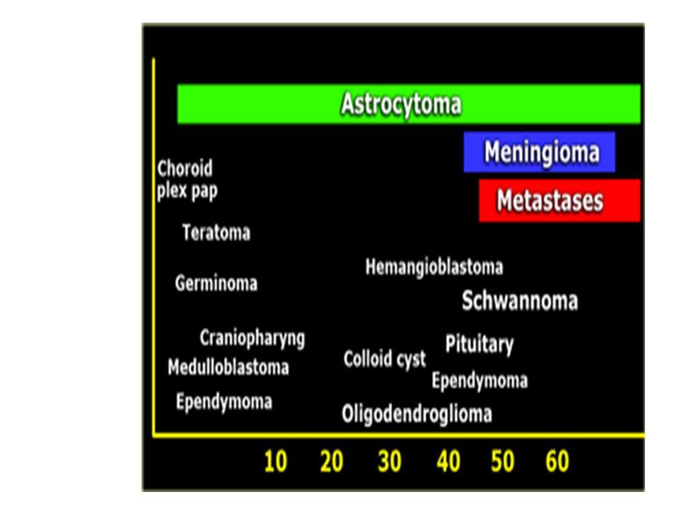 GBM -Ayırt edici bulgusu tümör nekrozu -Sıklıkla orta hattı çaprazlar. - kötü prognozu var.