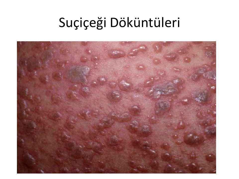 Suçiçeği Tedavisi • Hastalığın mikrobu üzerine tesirli olan özel bir ilâç yoktur.