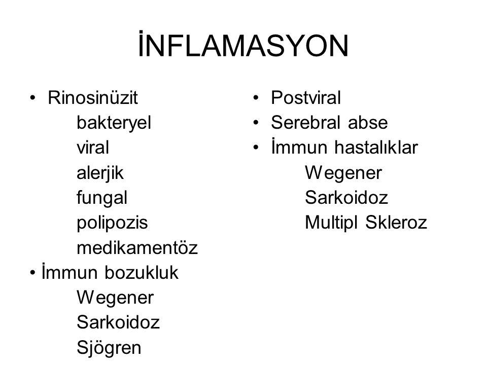 İNFLAMASYON •Rinosinüzit bakteryel viral alerjik fungal polipozis medikamentöz • İmmun bozukluk Wegener Sarkoidoz Sjögren •Postviral •Serebral abse •İmmun hastalıklar Wegener Sarkoidoz Multipl Skleroz