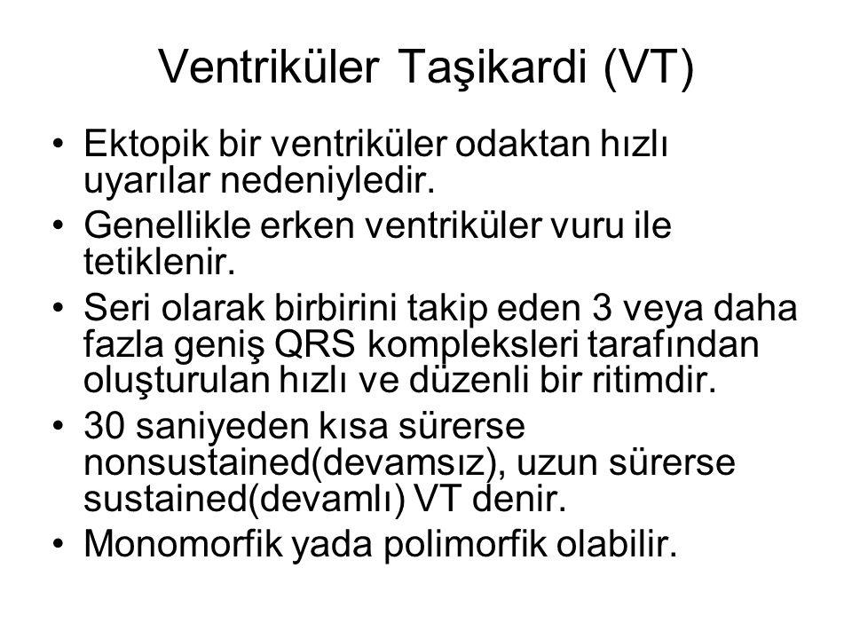 Ventriküler Taşikardi (VT) •Ektopik bir ventriküler odaktan hızlı uyarılar nedeniyledir.