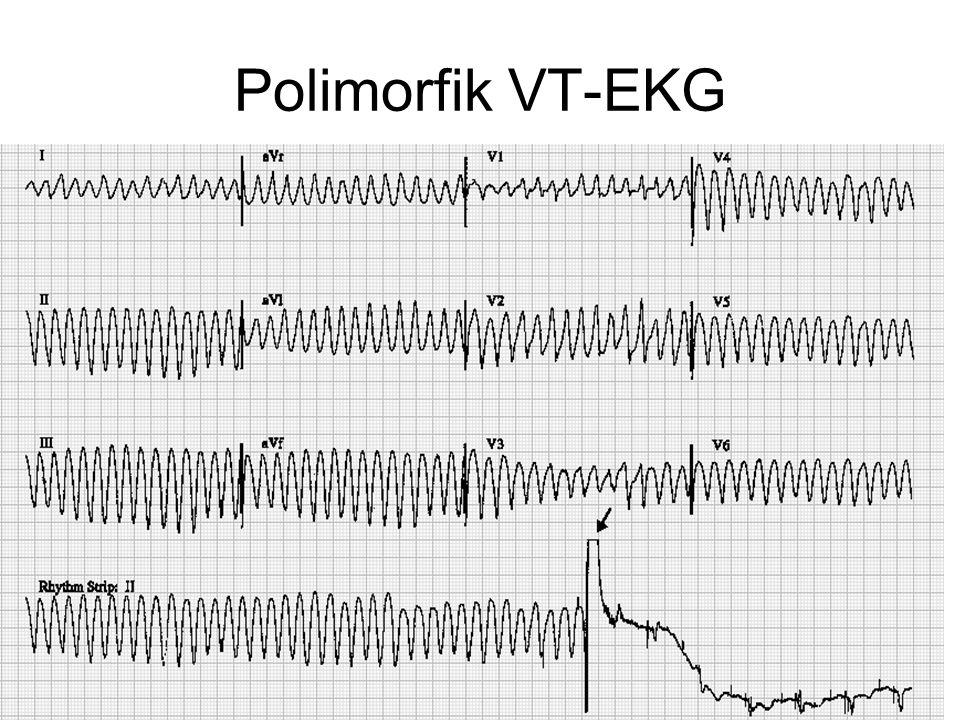 Polimorfik VT-EKG