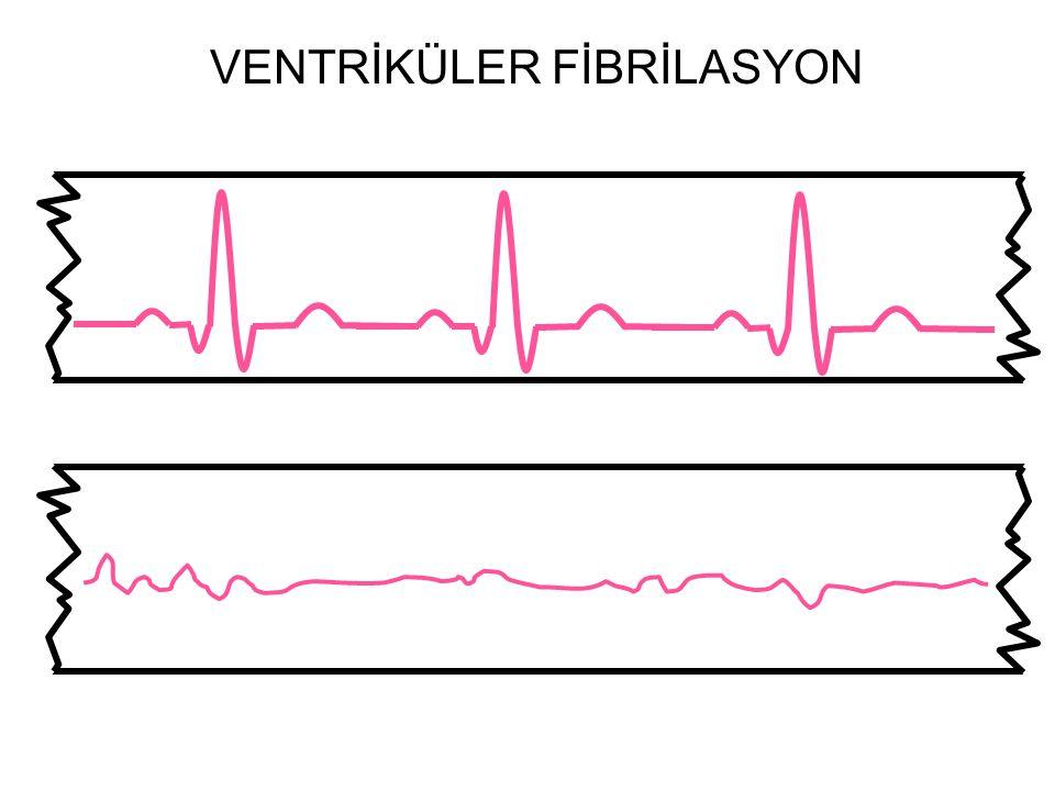 Ventriküler Fibrilasyon Normal EKG VENTRİKÜLER FİBRİLASYON