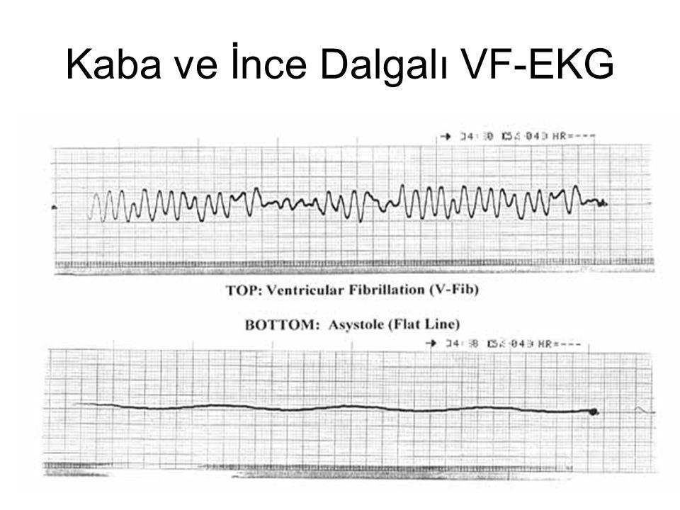 Kaba ve İnce Dalgalı VF-EKG