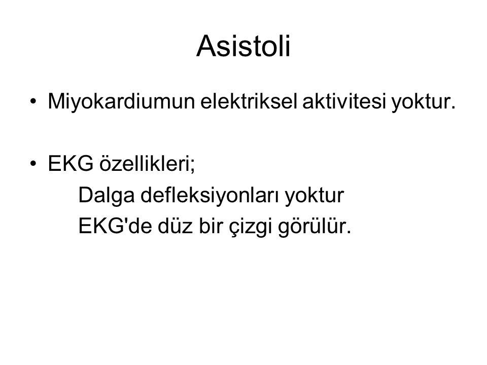 Asistoli •Miyokardiumun elektriksel aktivitesi yoktur.