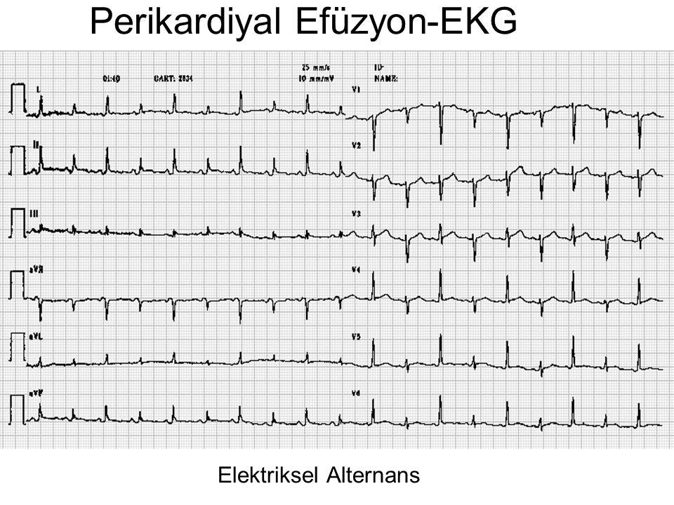 Perikardiyal Efüzyon-EKG Elektriksel Alternans