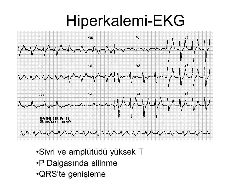 Hiperkalemi-EKG •Sivri ve amplütüdü yüksek T •P Dalgasında silinme •QRS'te genişleme