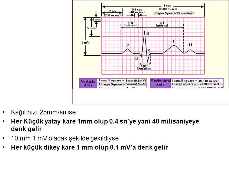 •Kağıt hızı 25mm/sn ise: •Her Küçük yatay kare 1mm olup 0.4 sn'ye yani 40 milisaniyeye denk gelir •10 mm 1 mV olacak şekilde çekildiyse •Her küçük dikey kare 1 mm olup 0.1 mV'a denk gelir