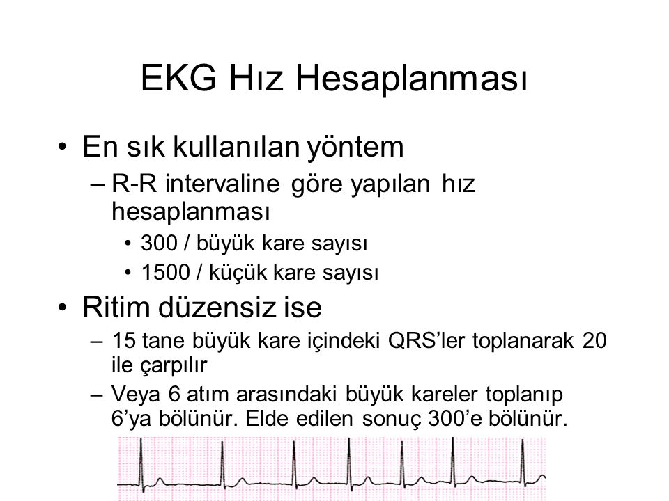 EKG Hız Hesaplanması •En sık kullanılan yöntem –R-R intervaline göre yapılan hız hesaplanması •300 / büyük kare sayısı •1500 / küçük kare sayısı •Ritim düzensiz ise –15 tane büyük kare içindeki QRS'ler toplanarak 20 ile çarpılır –Veya 6 atım arasındaki büyük kareler toplanıp 6'ya bölünür.