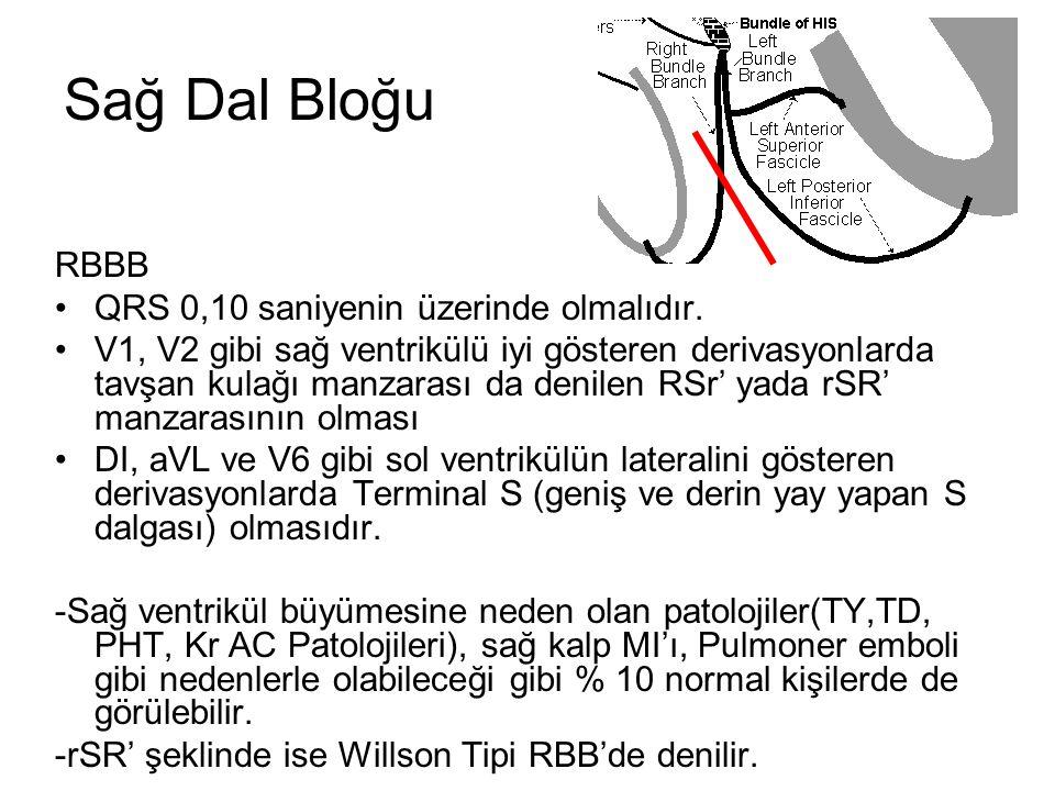 Sağ Dal Bloğu RBBB •QRS 0,10 saniyenin üzerinde olmalıdır.