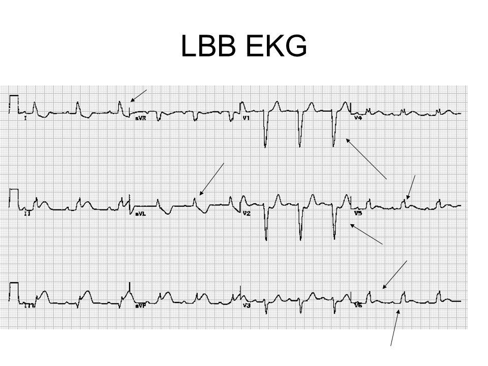 LBB EKG