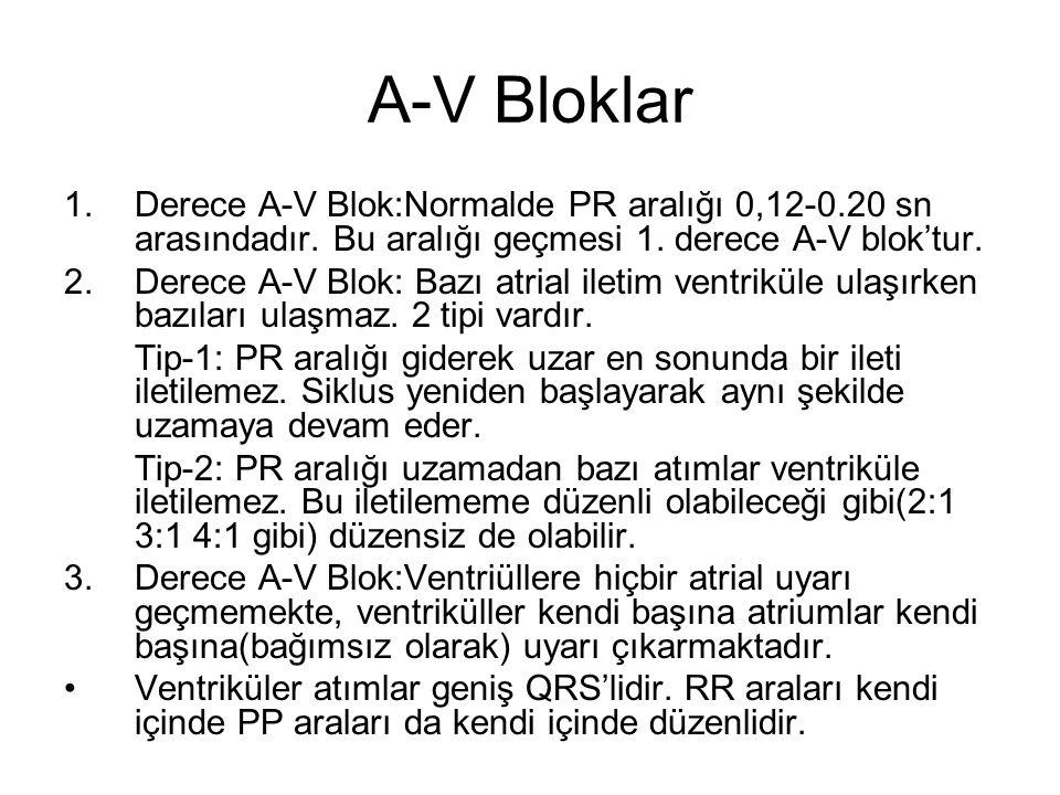 A-V Bloklar 1.Derece A-V Blok:Normalde PR aralığı 0,12-0.20 sn arasındadır.