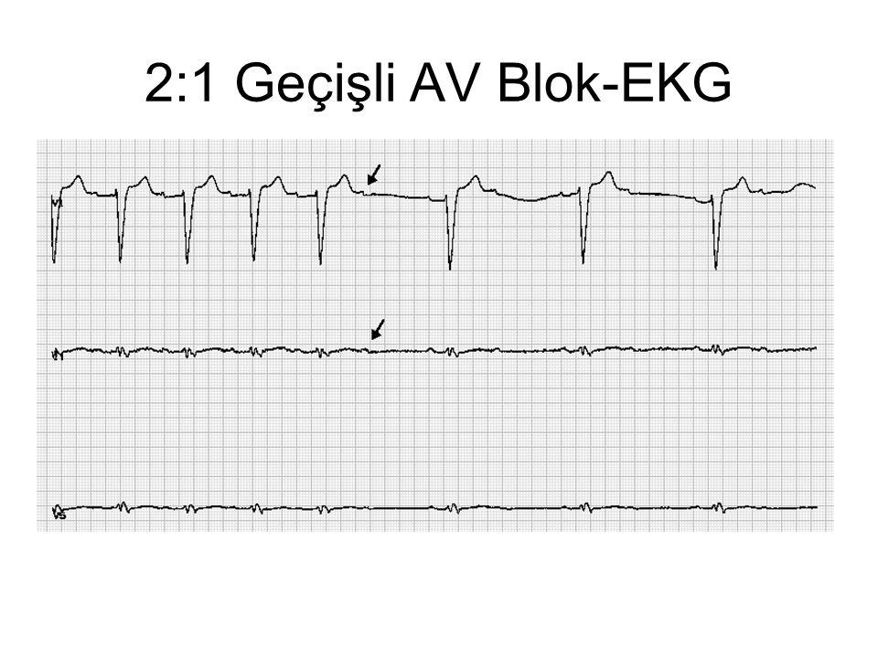 2:1 Geçişli AV Blok-EKG