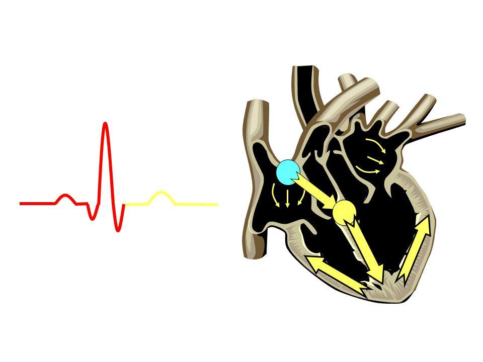 Junctional Ritim •SA nodun baskılanması nedeniyle AV nodda bir odak pacemaker olarak SA nodun yerini alır.