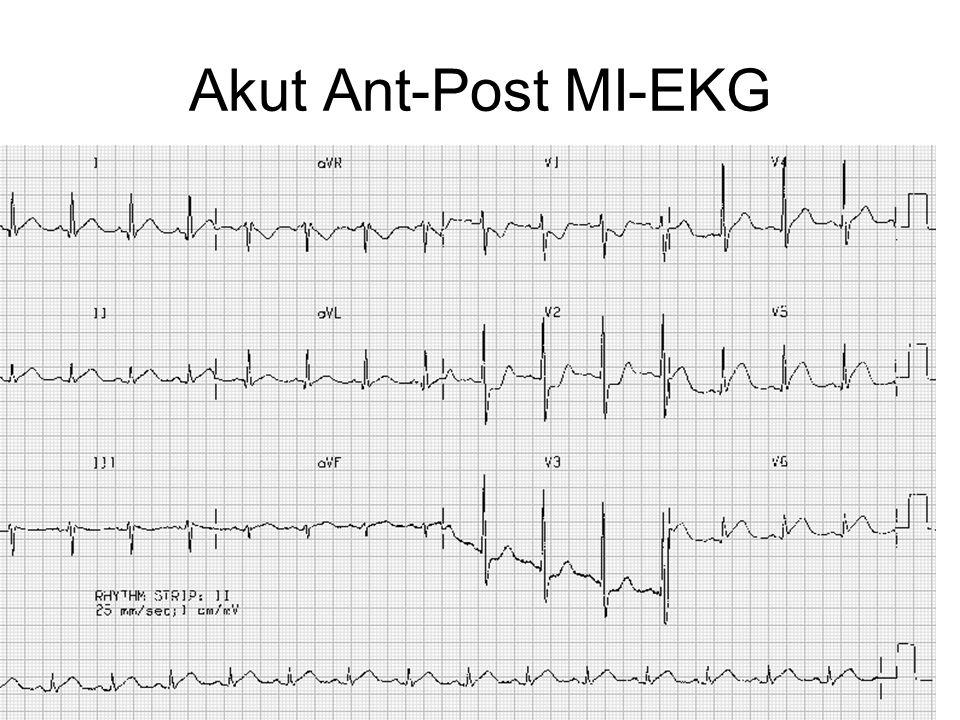 Akut Ant-Post MI-EKG
