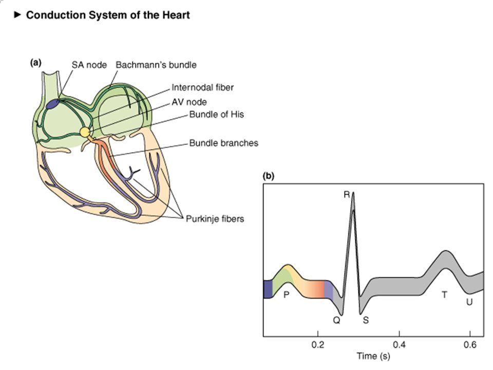 Hipokalemi-EKG 1.Düzleşen T dalgaları 2.Belirgin U dalgası 3.Belirgin P dalgası