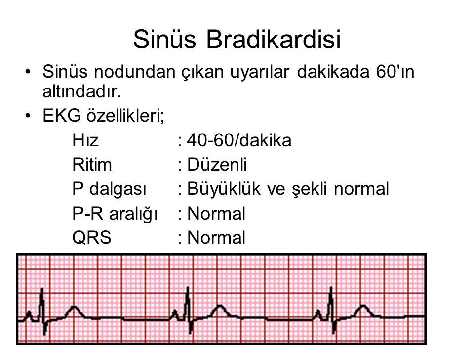 Sinüs Bradikardisi •Sinüs nodundan çıkan uyarılar dakikada 60 ın altındadır.