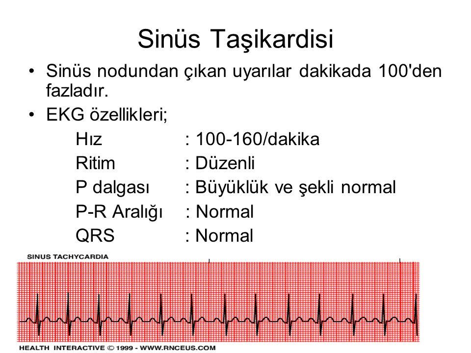 Sinüs Taşikardisi •Sinüs nodundan çıkan uyarılar dakikada 100 den fazladır.