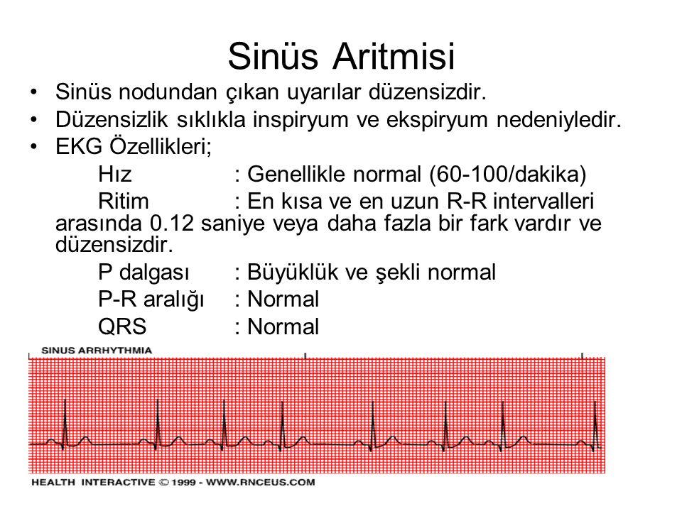Sinüs Aritmisi •Sinüs nodundan çıkan uyarılar düzensizdir.