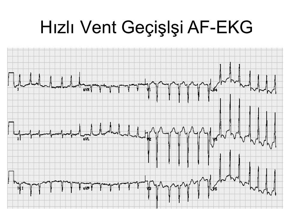 Hızlı Vent Geçişlşi AF-EKG