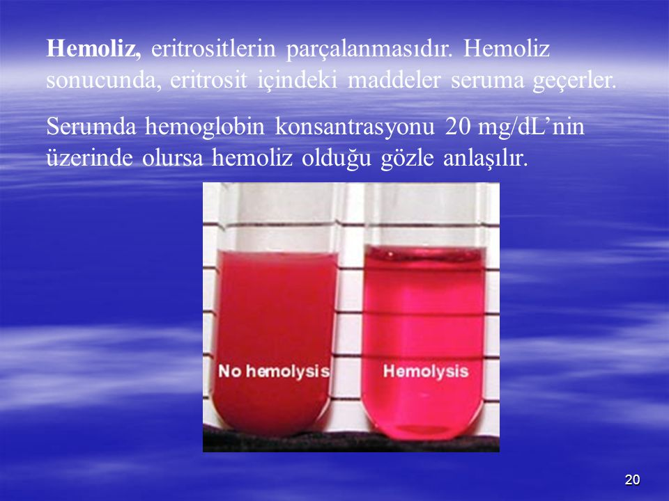 20 Hemoliz, eritrositlerin parçalanmasıdır. Hemoliz sonucunda, eritrosit içindeki maddeler seruma geçerler. Serumda hemoglobin konsantrasyonu 20 mg/dL