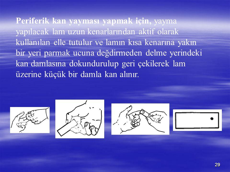 29 Periferik kan yayması yapmak için, yayma yapılacak lam uzun kenarlarından aktif olarak kullanılan elle tutulur ve lamın kısa kenarına yakın bir yer