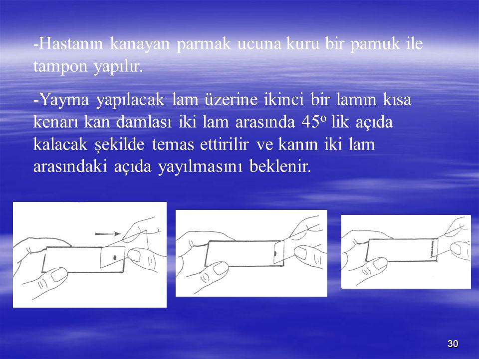30 -Hastanın kanayan parmak ucuna kuru bir pamuk ile tampon yapılır. -Yayma yapılacak lam üzerine ikinci bir lamın kısa kenarı kan damlası iki lam ara