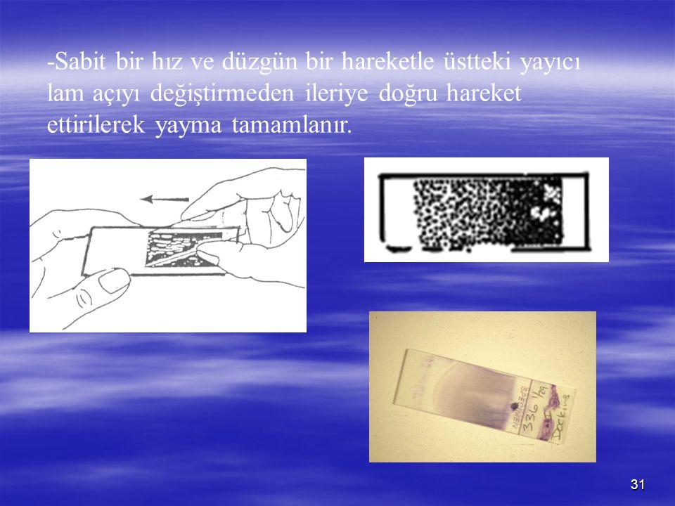 31 -Sabit bir hız ve düzgün bir hareketle üstteki yayıcı lam açıyı değiştirmeden ileriye doğru hareket ettirilerek yayma tamamlanır.