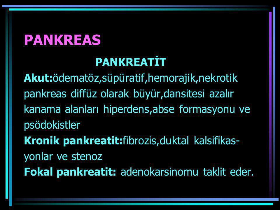 PANKREAS PANKREATİT Akut:ödematöz,süpüratif,hemorajik,nekrotik pankreas diffüz olarak büyür,dansitesi azalır kanama alanları hiperdens,abse formasyonu