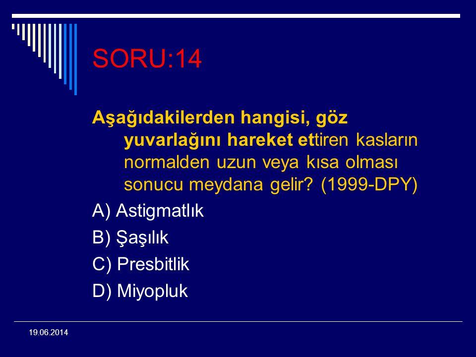 19.06.2014 SORU:14 Aşağıdakilerden hangisi, göz yuvarlağını hareket ettiren kasların normalden uzun veya kısa olması sonucu meydana gelir? (1999-DPY)
