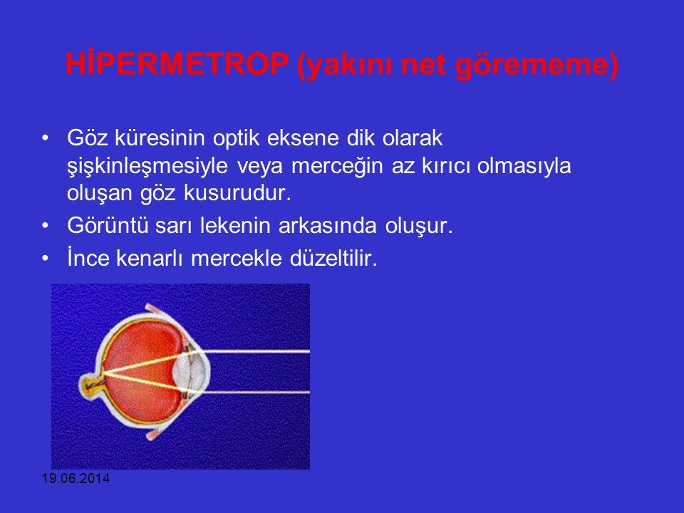 19.06.2014 HİPERMETROP (yakını net görememe) •Göz küresinin optik eksene dik olarak şişkinleşmesiyle veya merceğin az kırıcı olmasıyla oluşan göz kusu