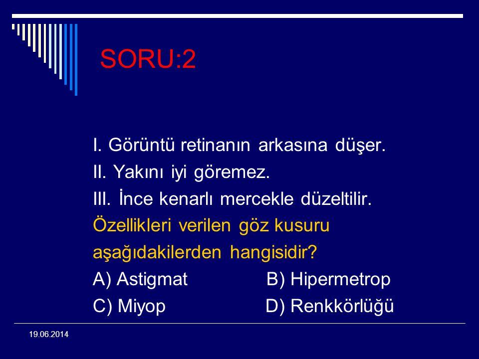 19.06.2014 SORU:2 I. Görüntü retinanın arkasına düşer. II. Yakını iyi göremez. III. İnce kenarlı mercekle düzeltilir. Özellikleri verilen göz kusuru a