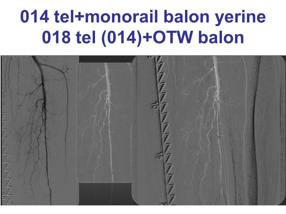 014 tel+monorail balon yerine 018 tel (014)+OTW balon