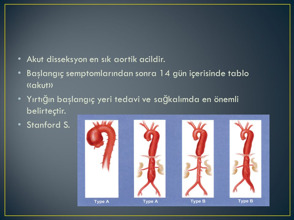 • Akut disseksyon en sık aortik acildir. • Başlangıç semptomlarından sonra 14 gün içerisinde tablo «akut» • Yırtı ğ ın başlangıç yeri tedavi ve sa ğ k