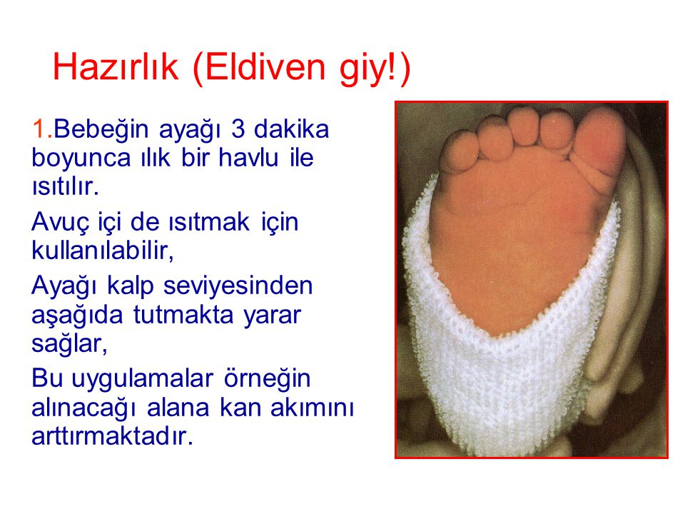 Hazırlık (Eldiven giy!) 1.Bebeğin ayağı 3 dakika boyunca ılık bir havlu ile ısıtılır. Avuç içi de ısıtmak için kullanılabilir, Ayağı kalp seviyesinden