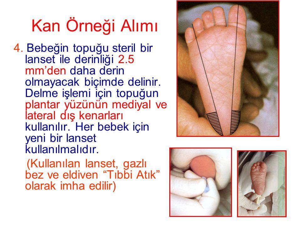 Kan Örneği Alımı 4. Bebeğin topuğu steril bir lanset ile derinliği 2.5 mm'den daha derin olmayacak biçimde delinir. Delme işlemi için topuğun plantar