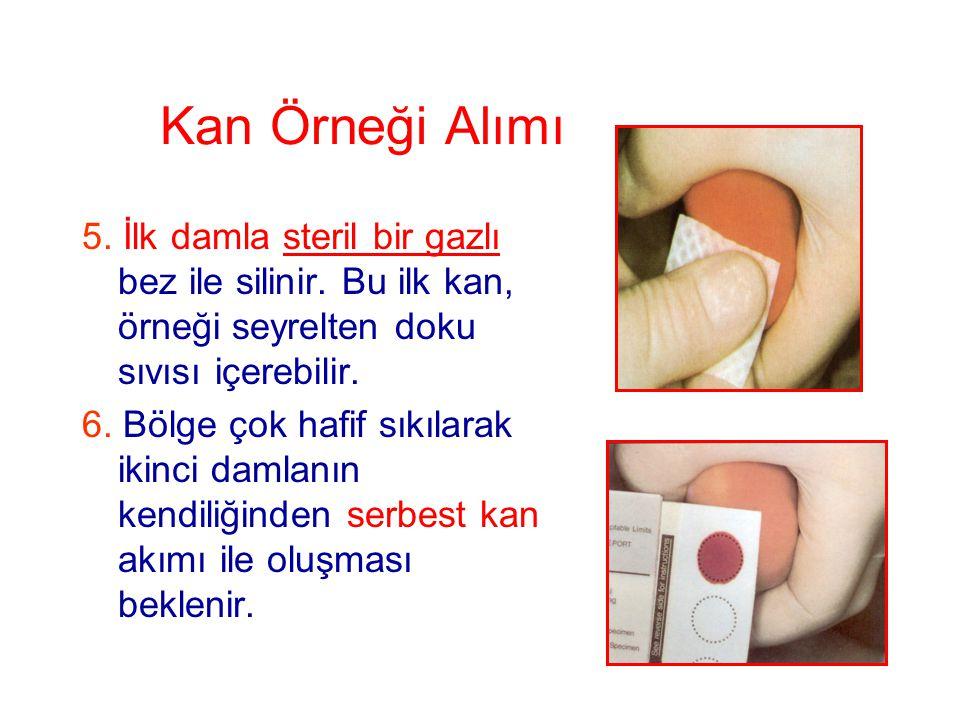 Kan Örneği Alımı 5. İlk damla steril bir gazlı bez ile silinir. Bu ilk kan, örneği seyrelten doku sıvısı içerebilir. 6. Bölge çok hafif sıkılarak ikin