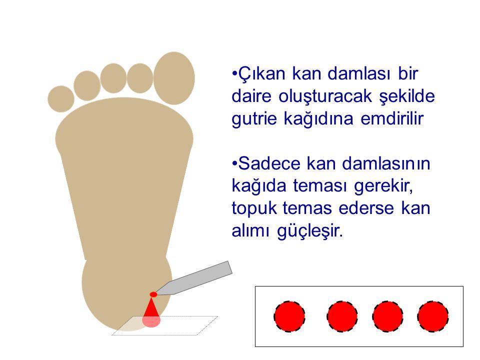 •Çıkan kan damlası bir daire oluşturacak şekilde gutrie kağıdına emdirilir •Sadece kan damlasının kağıda teması gerekir, topuk temas ederse kan alımı