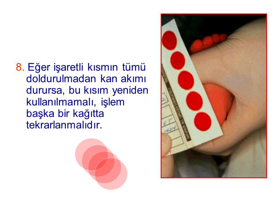 8. Eğer işaretli kısmın tümü doldurulmadan kan akımı durursa, bu kısım yeniden kullanılmamalı, işlem başka bir kağıtta tekrarlanmalıdır.
