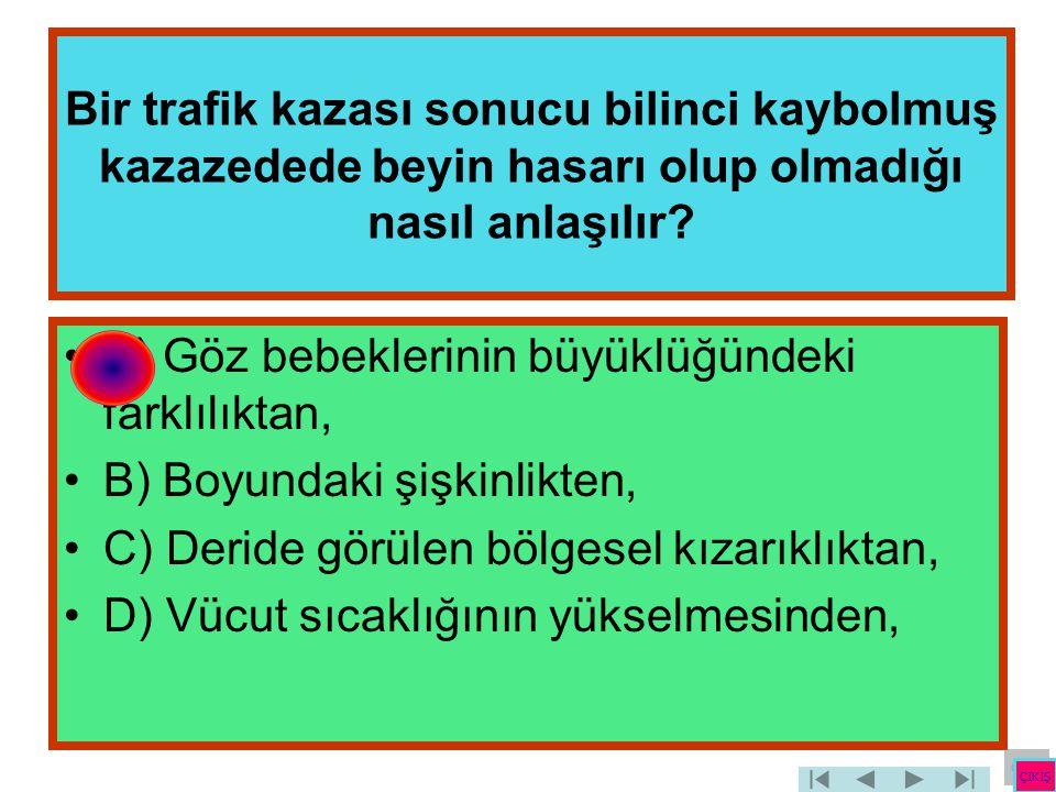 Bir trafik kazası sonucu bilinci kaybolmuş kazazedede beyin hasarı olup olmadığı nasıl anlaşılır? •A) Göz bebeklerinin büyüklüğündeki farklılıktan, •B