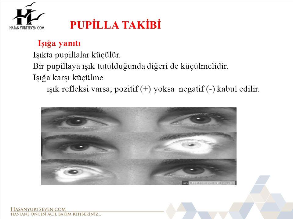 İzokori (   ) Her iki pupillanın eşit olması Anizokori (   ) Pupillaların eşit olmaması.