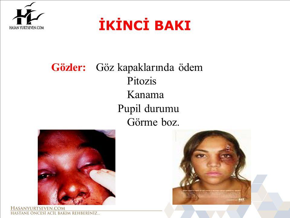 Kulak: Kanama/akıntı Battle's Bulgusu Kulak Arkasında Ekimoz (8-12 saat sonra) Burun: Deformite Kanama Rinore İKİNCİ BAKI
