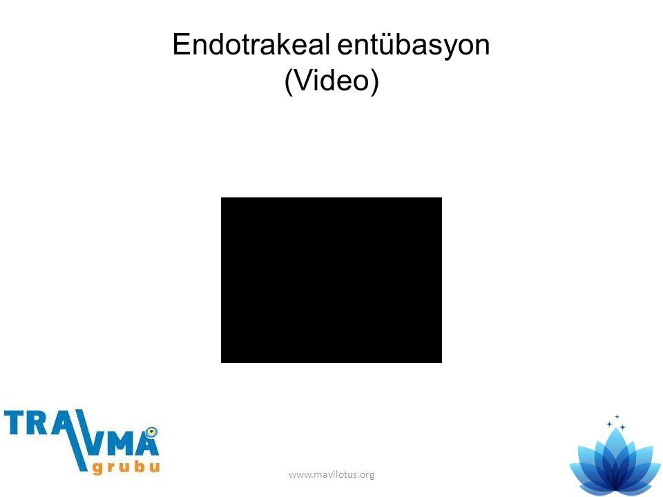 Endotrakeal entübasyon (Video) www.mavilotus.org