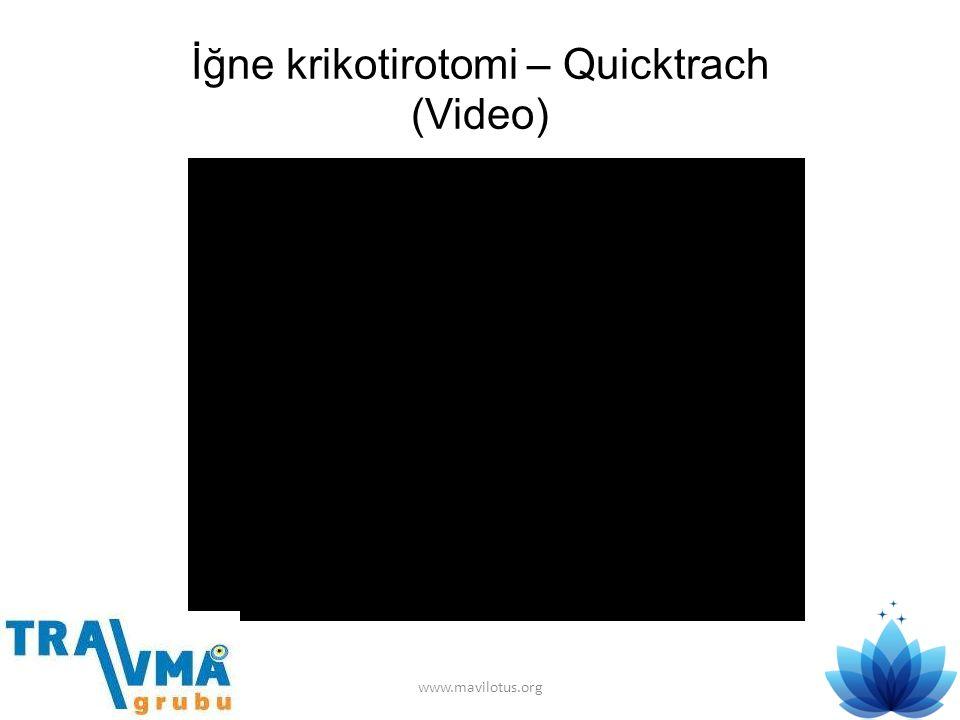 İğne krikotirotomi – Quicktrach (Video) www.mavilotus.org