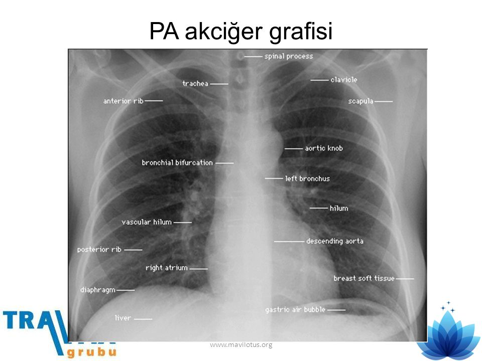 PA akciğer grafisi www.mavilotus.org