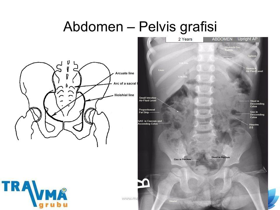 Abdomen – Pelvis grafisi www.mavilotus.org