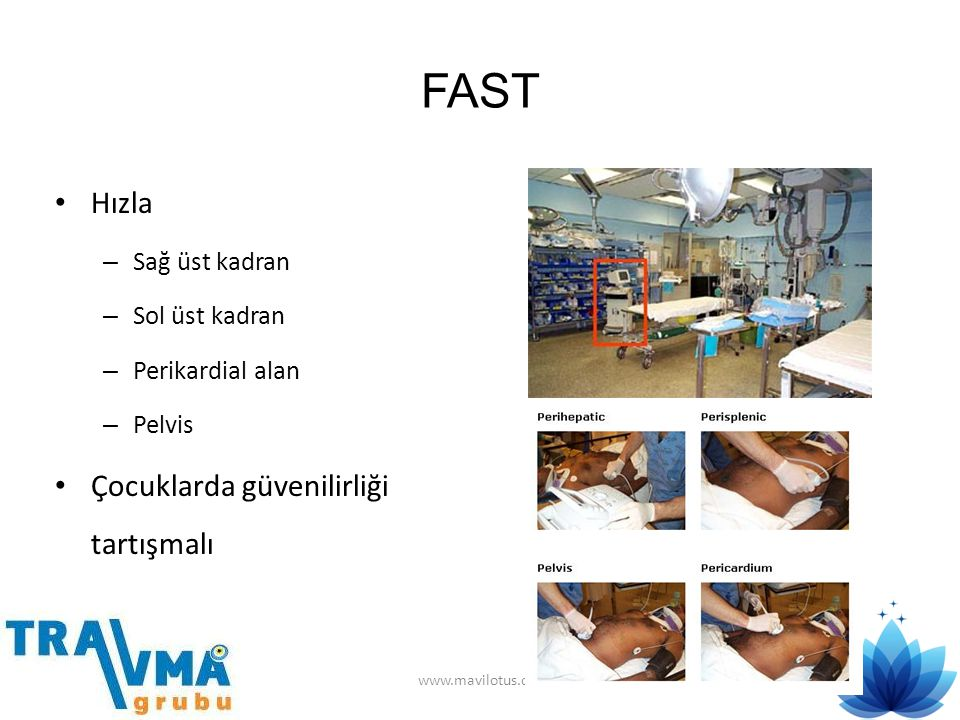 FAST • Hızla – Sağ üst kadran – Sol üst kadran – Perikardial alan – Pelvis • Çocuklarda güvenilirliği tartışmalı www.mavilotus.org