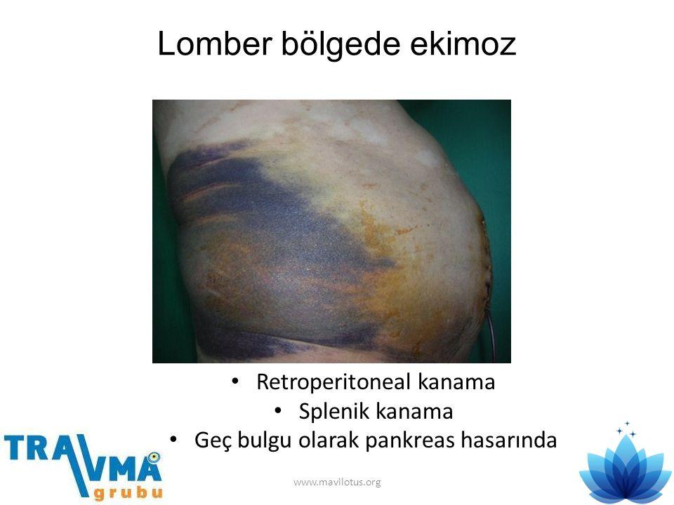 Lomber bölgede ekimoz • Retroperitoneal kanama • Splenik kanama • Geç bulgu olarak pankreas hasarında www.mavilotus.org