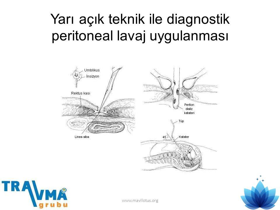 Yarı açık teknik ile diagnostik peritoneal lavaj uygulanması www.mavilotus.org