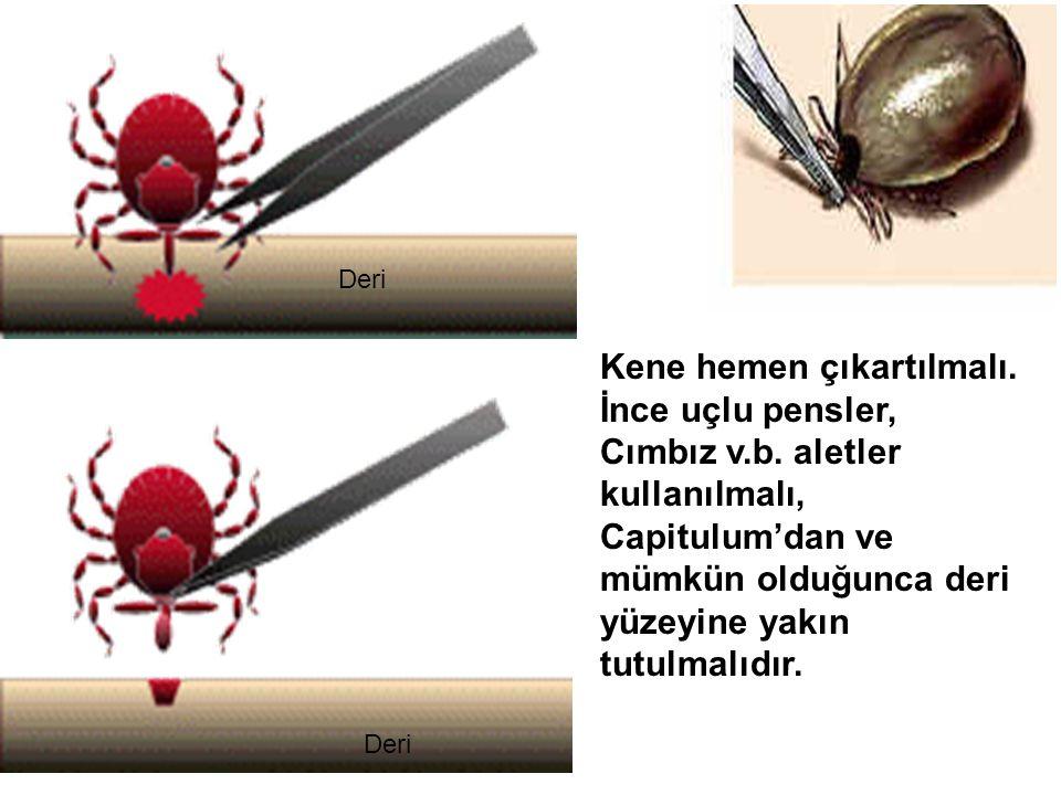 Kene hemen çıkartılmalı. İnce uçlu pensler, Cımbız v.b. aletler kullanılmalı, Capitulum'dan ve mümkün olduğunca deri yüzeyine yakın tutulmalıdır. Deri
